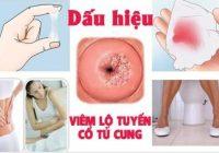 [ TỔNG HỢP ] 15+ dấu hiệu viêm lộ tuyến cổ tử cung dễ nhận biết