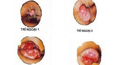 [ Bệnh trĩ ngoại độ 3 ] Nguyên nhân + triệu chứng và cách chữa hiệu quả, an toàn